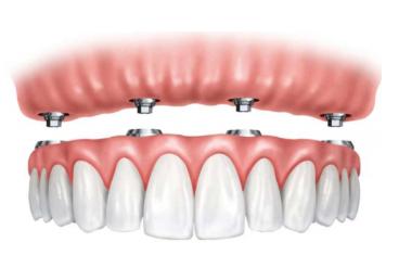 имплантация зубов схема