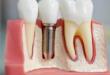 имплантация зубов вид сбоку